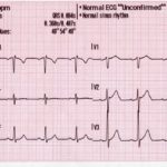 ECG – What and Why?