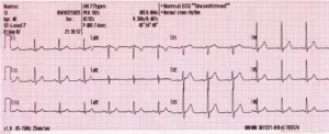 use 12_lead_generated_sinus_rhythm