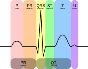 use EKG_Complex_en